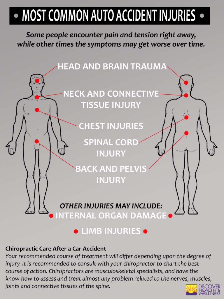 aurora-colorado-chiropratic-10-most-common-auto-injuries-infographic